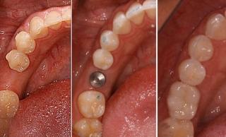 Классическая имплантация зуба: до и после